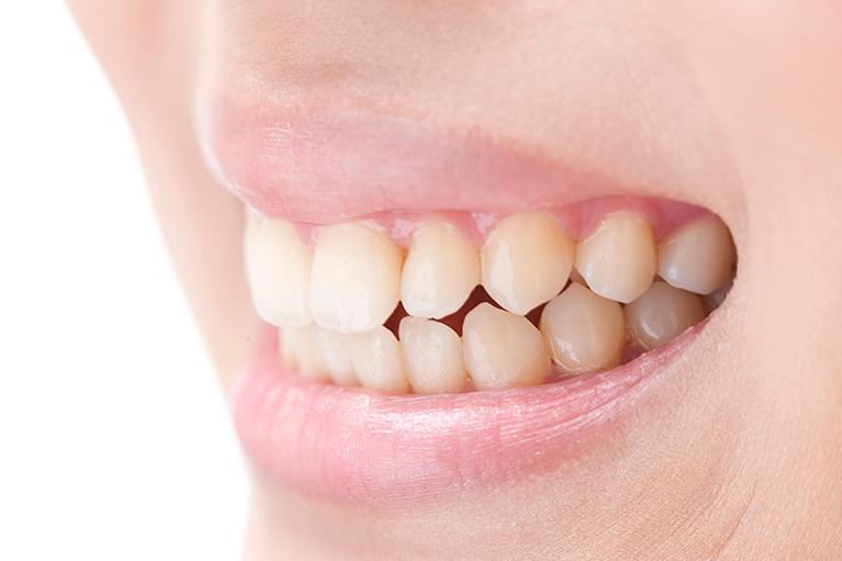 歯周病の原因は?