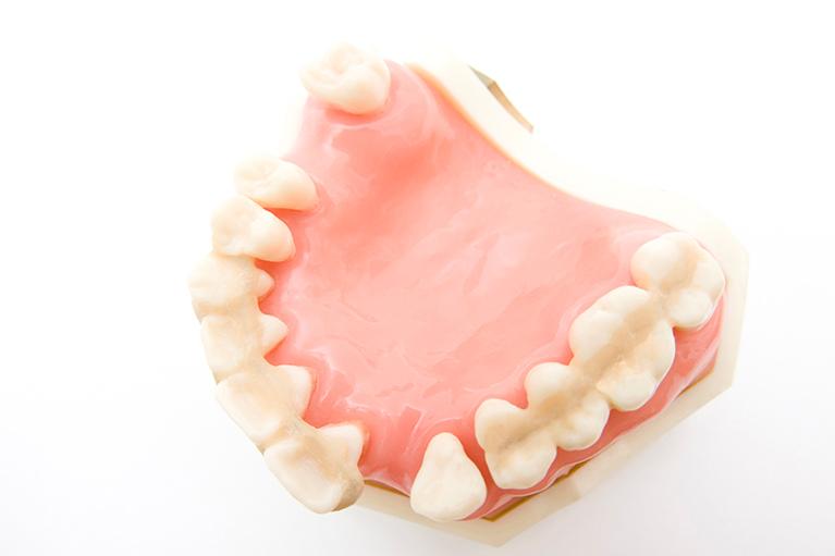 歯周病の症状と進行について